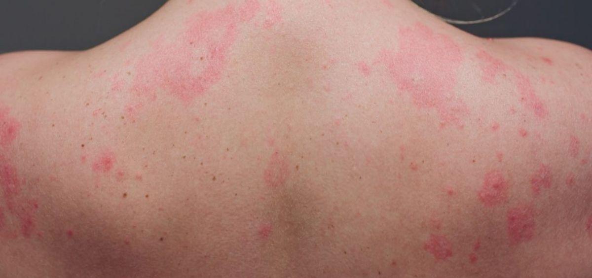 Lesiones cutáneas por coronavirus Covid 19. (Foto. Aedv)