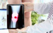 El estudio confirma el impacto negativo de múltiples comorbilidades en el curso de una artrosis de cadera (Foto. Freepik)