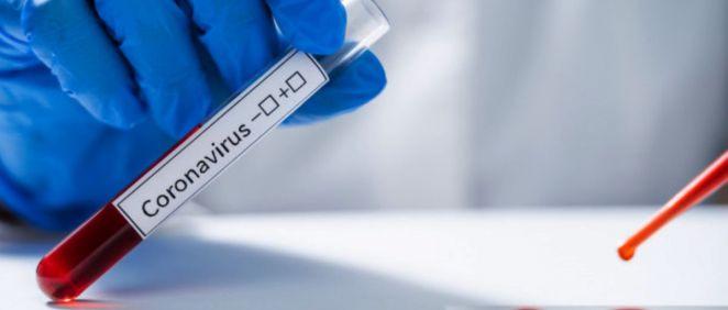 Test de prueba del coronavirus (Foto. Freepik)