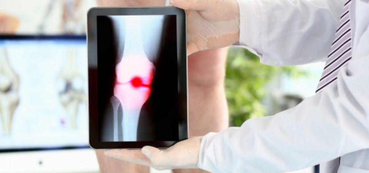 La radioterapia no oncológica consiste en administrar dosis bajas de radiación, la décima parte de la dosis utilizada en tratamientos oncológicos (Foto. Freepik)