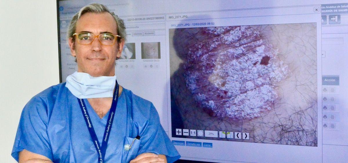 David Moreno Ramírez en sala digital del servicio de Dermatología del Hospital Virgen Macarena.