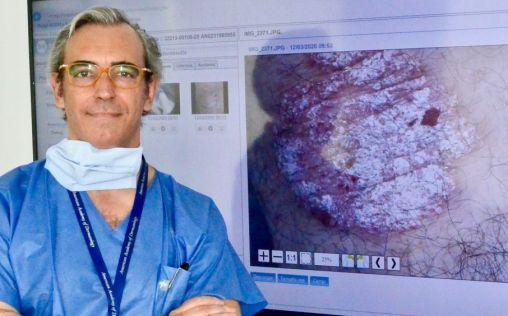 """""""El futuro de la Dermatología vendrá marcado por la aplicación de la Inteligencia Artificial"""""""