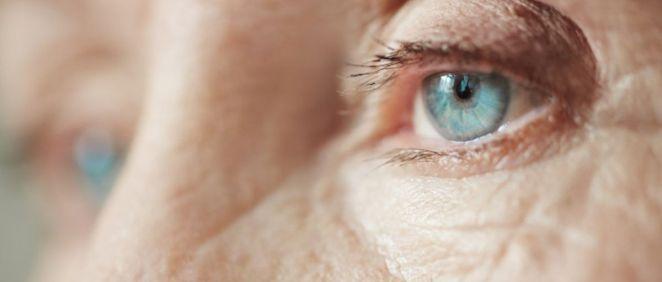 Paciente con enfermedad ocular (Foto. Mucho por ver)