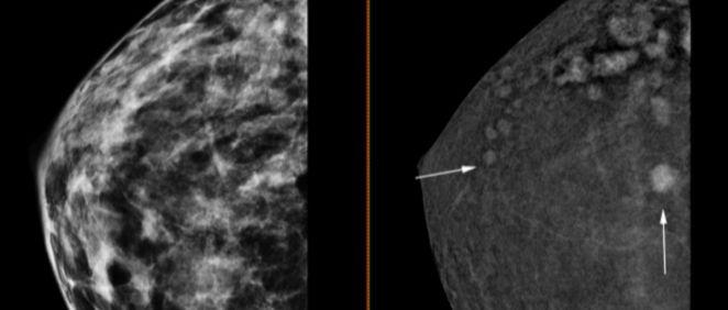 Mamografía 3D con contraste (Foto. Ribera Salud)