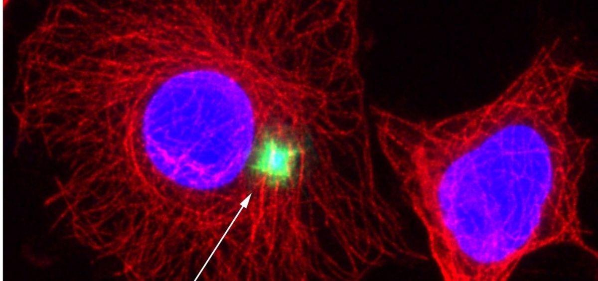 El inflamasoma es una estructura de la célula que se forma en respuesta a señales de daño o peligro. (Foto. IBMB CSIC)