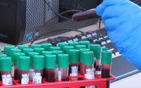 Trabajos en un laboratorio en el Instituto Jenner sobre la vacuna contra el coronavirus desarrollada por la Universidad de Oxford y AstraZeneca (Foto: John Cairns - University Of Oxford - DPA)