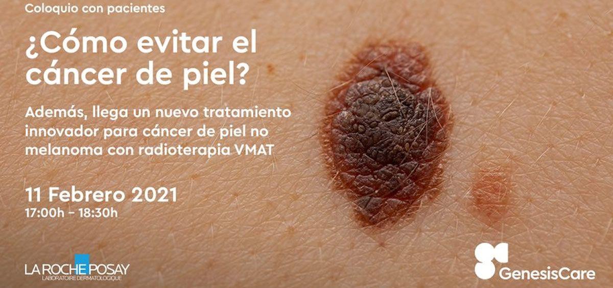 que es la cancer de piel)