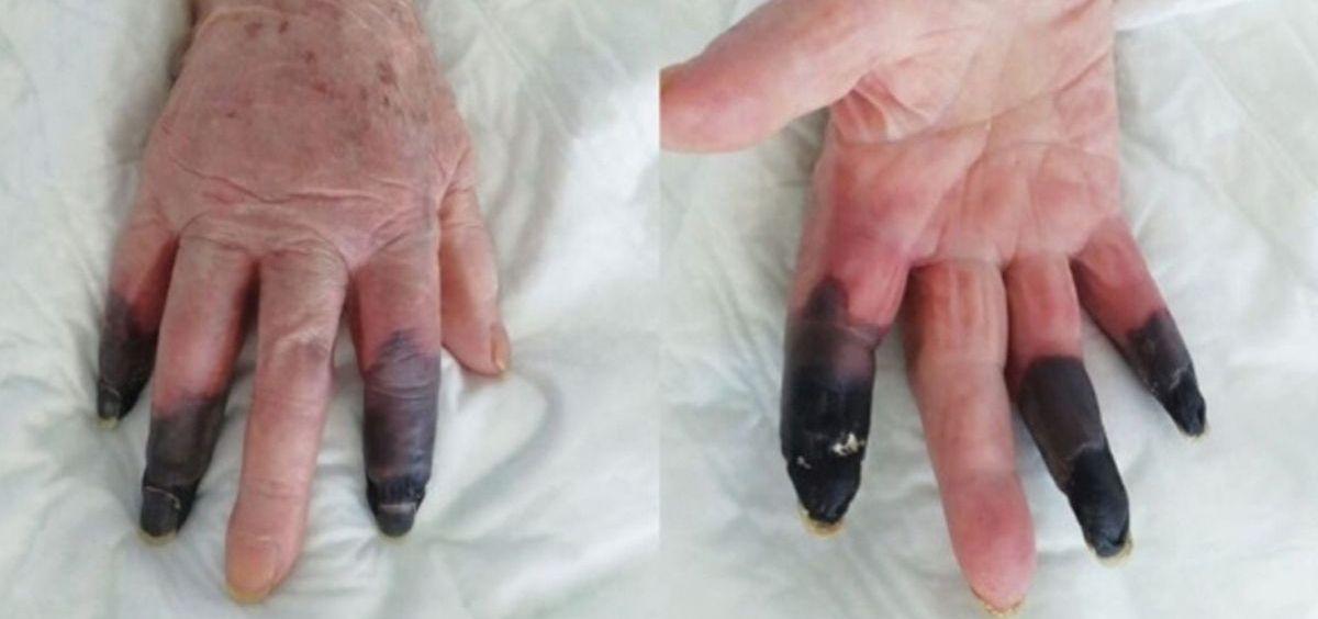 Amputan los dedos a una mujer por Covid 19 (Foto. European Journal of Vascular and Endovascular Surgery)