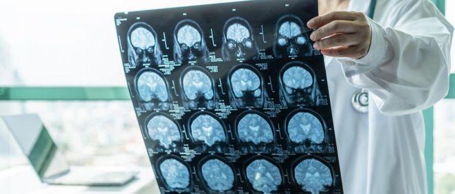 Un diagnóstico tardío de las encefalitis desemboca en secuelas neurológicas graves
