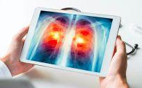 Radiografía digital acerca de un cáncer de pulmón (Foto. US   Archivo  EP)