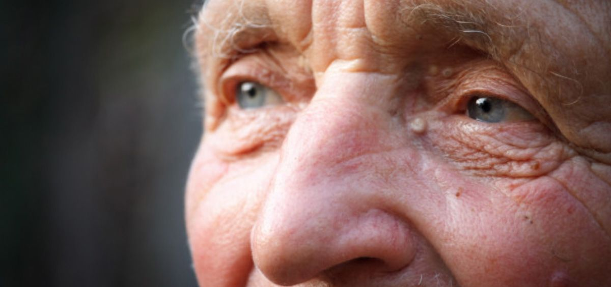 El alzhéimer afecta a unas 900.000 personas a las que las que se suman unos 40.000 diagnósticos cada año (Foto. Freepik)