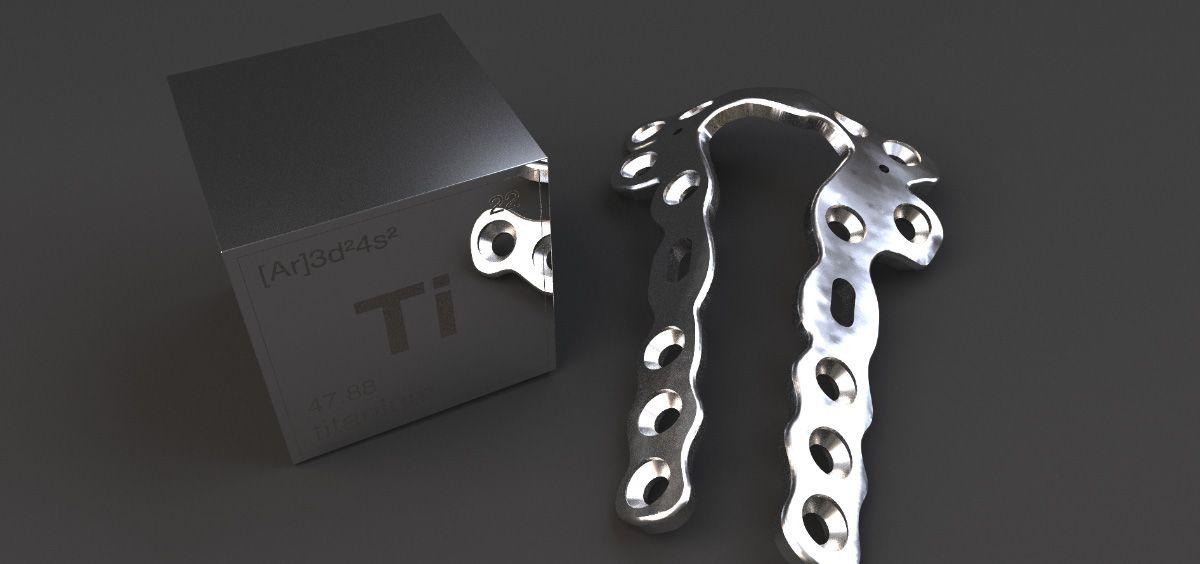 Protésis de titanio diseñada por Custoimplants (Foto. Custoimplants)