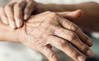 Paciente con Párkinson (Foto. Hospital Ruber Internacional)