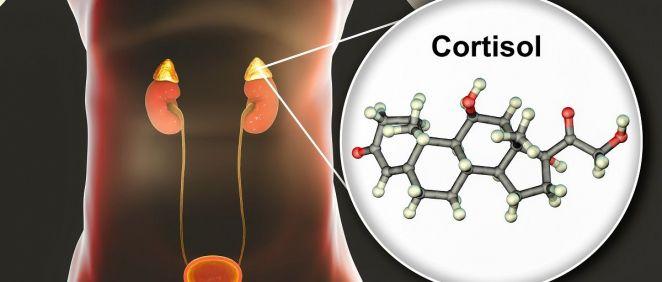 El síndrome de Cushing se produce cuando por diferentes causas se incrementa la producción de cortisol
