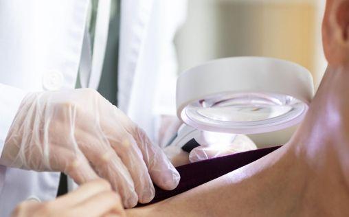 Las revisiones dermatológicas, clave para la detección precoz del cáncer de piel