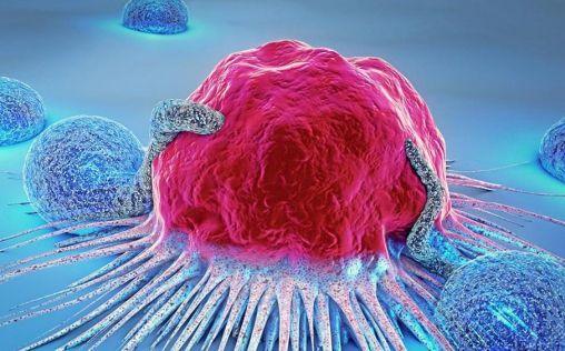 Desarrollan una 'nariz electrónica' que detecta cánceres con precisión