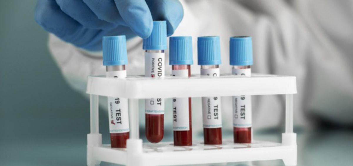 Muestras de sangre de pacientes con Covid 19