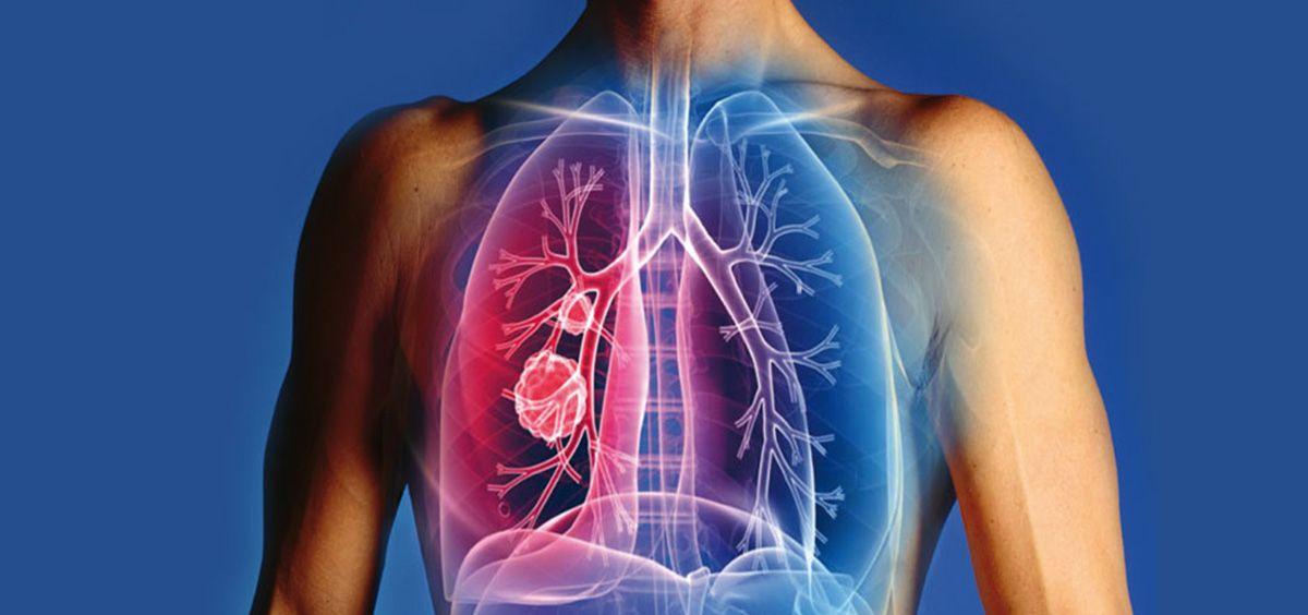 Diseñan unas nanopartículas para curar el asma alérgico