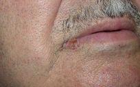 El carcinoma espinocelular de labio aparece normalmente en hombres mayores de 60 años (Foto: Hospital Ruber Internacional)
