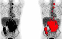 Imagen de un PET/TC convencional, con el cuerpo humano adquirido a tramos y posteriormente reconstruido en conjunto (Foto: Quibim)