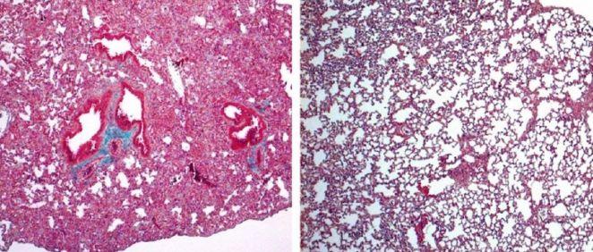 A la izquierda, pulmón de ratón con signos de fibrosis pulmonar grave. A la derecha, pulmón de ratón tratado con cortistatina, en el que el daño es mucho menor (Foto: IPBLN-CSIC)