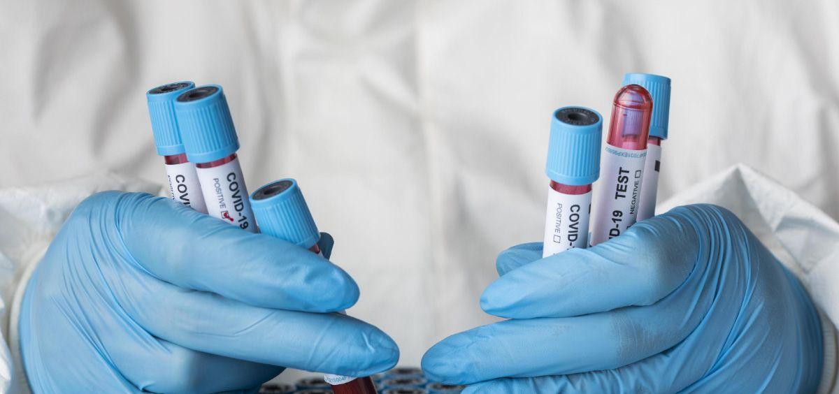 Científico sosteniendo muestras de sangre de pacientes infectados por SARS-CoV-2 (Foto. Freepik)