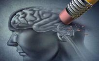 """El Día Mundial del Alzheimer se celebra este martes bajo el lema """"Cero emisiones, Cero Alzheimer"""" (Foto: Centro de Neurología Avanzado, CNA)"""
