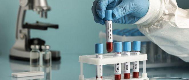 Científico sosteniendo muestras de sangre de pacientes COVID 19 (Foto. Freepik)