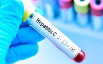 Hepatitis C. (Foto. Freepik)