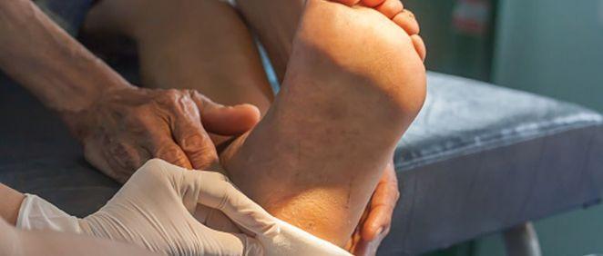 Alrededor del 15% de los pacientes diabéticos tendrá úlceras en las extremidades inferiores en el transcurso de esta enfermedad (Foto: FJD)