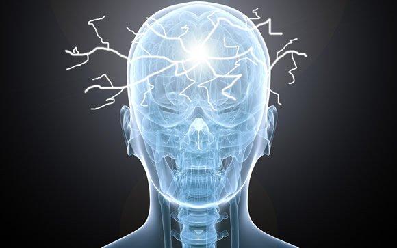 Cerca de 22.000 nuevos casos de epilepsia al año