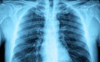 La resistencia a los antibióticos exige nuevos enfoques terapéuticos para la tuberculosis