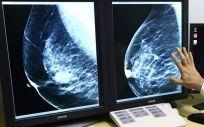 Las mamografías a partir de los 40 prevendrían el 40% de las muertes por cáncer de mama