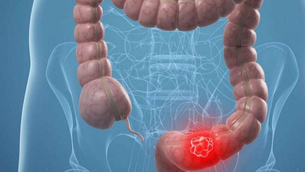 Endoscopio diagnóstico del cáncer de colon