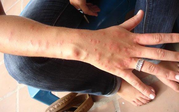 Las Garrapatas Podrían Ocasionar Alergia A La Carne