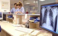 En 2018 enfermaron de tuberculosis en todo el mundo 10 millones de personas