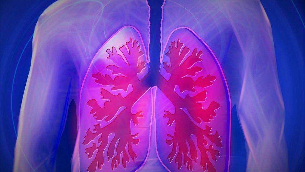 Expertos han debatido sobre el síndrome dedificultad respiratoria aguda e hipoxemia refractaria