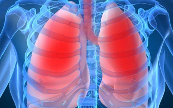 Crean un test para identificar la respuesta al tratamiento de pacientes operados de cáncer de pulmón