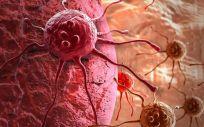 Los nuevos diagnósticos de cáncer aumentan año tras año en todo el mundo