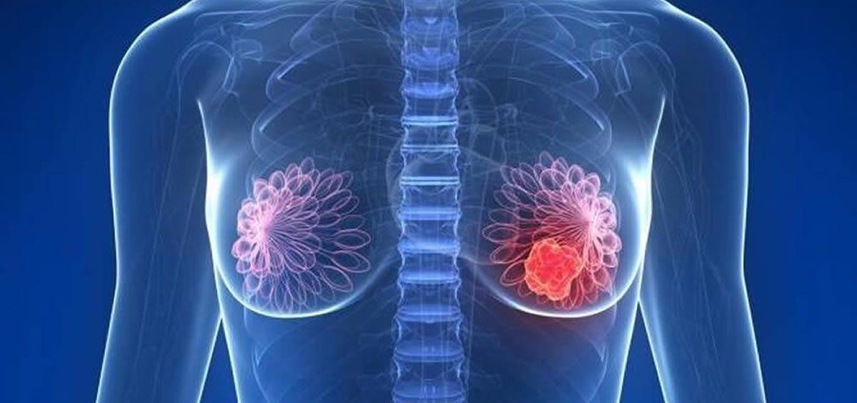 Científicos describen mecanismo implicado en cáncer mama