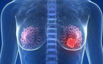 La vitamina D ayuda a disminuir la mortalidad en casos de cáncer de mama o de colón