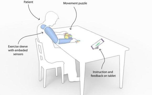 Una manga con wifi ayuda a la rehabilitación de pacientes con derrames cerebrales