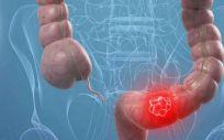 El cáncer colorrectal es curable en sus primeros estadios en el 90% de los casos
