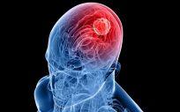 El estudio abre también nuevas vías para poder actuar tempranamente sobre las primeras dianas que desencadenan la progresión de la neuroinflamación y del deterioro neurológico.
