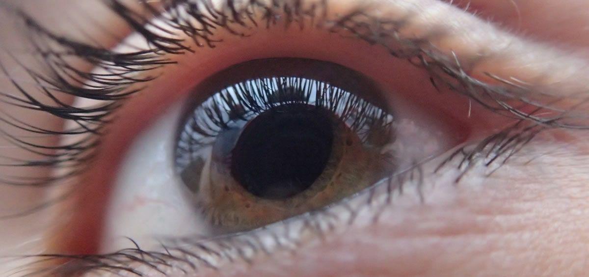 El glaucoma puede afectar gravemente a la visión e incluso llegar a la ceguera si no es tratado