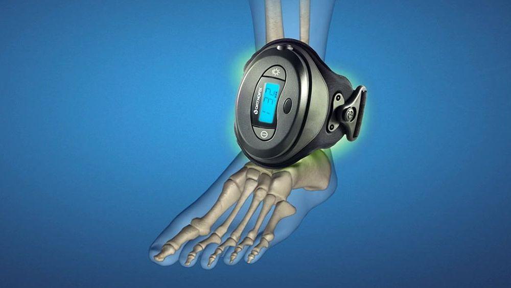 Orhofix es una terapia de estimulación del crecimiento óseo sin necesidad de intervención quirúrgica
