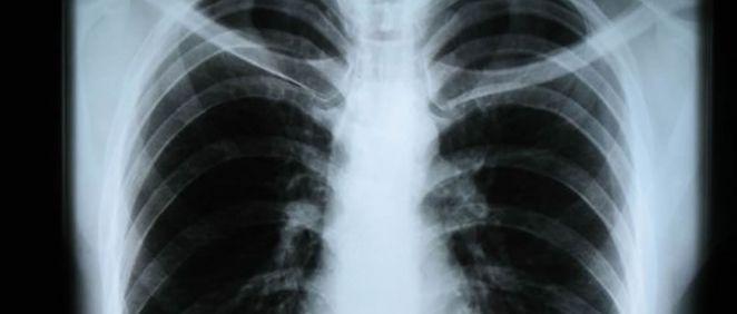 2,7 millones de españoles padecen enfermedad pulmonar obstructiva crónica
