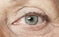 La degeneración macular asociada a la edad afecta a más del 10% de la población mayor de 65 años en los países desarrollados