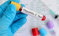 El plan nacional contra la hepatitis C ha situado a España en un lugar descatado en el abordaje de la enfermedad