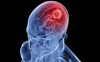Los avances en los tumores del Sistema Nervioso Central